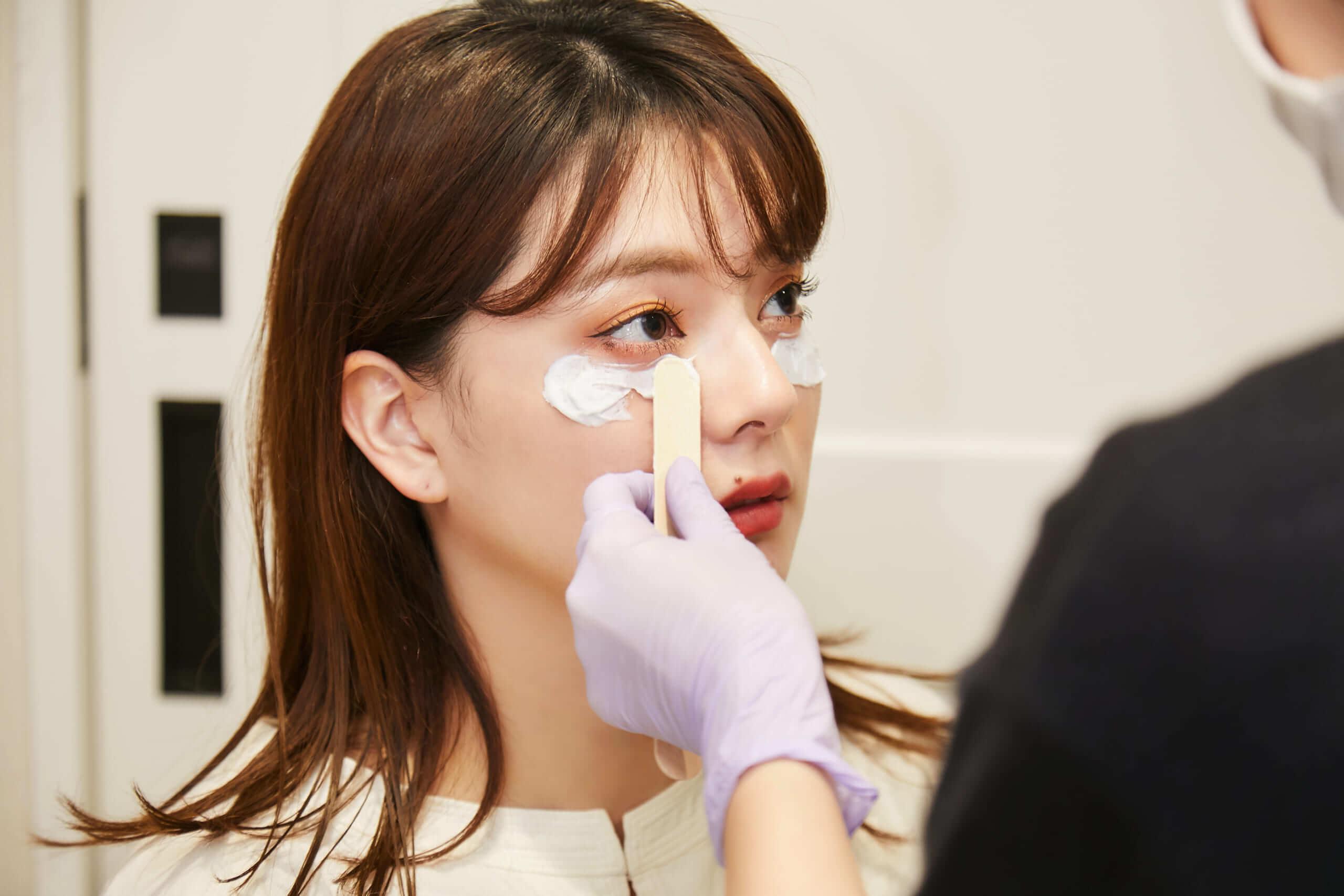 プルージュ美容クリニックのPRP「ぷるぷる注射」を打つ前に表面麻酔を塗る様子