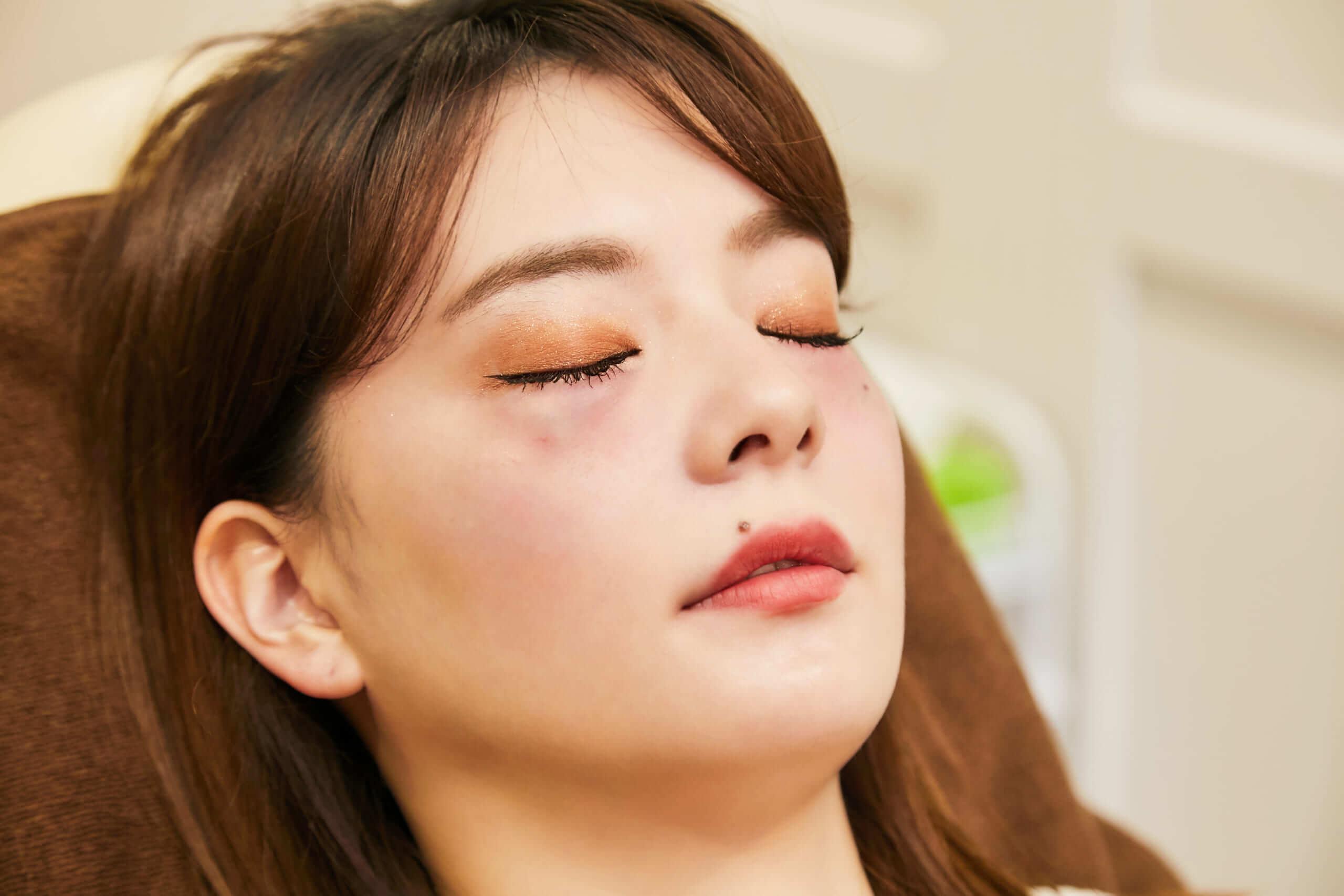 プルージュ美容クリニックのPRP「ぷるぷる注射」を打った施術後